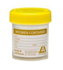 specimen-container